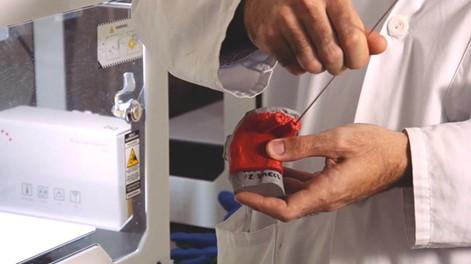 Planification chirurgicale à l'aide d'un guide chirurgical imprimé en 3D